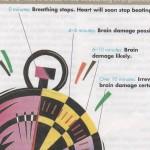 Brain Damage Chart 001