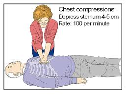 compressions 100 minute